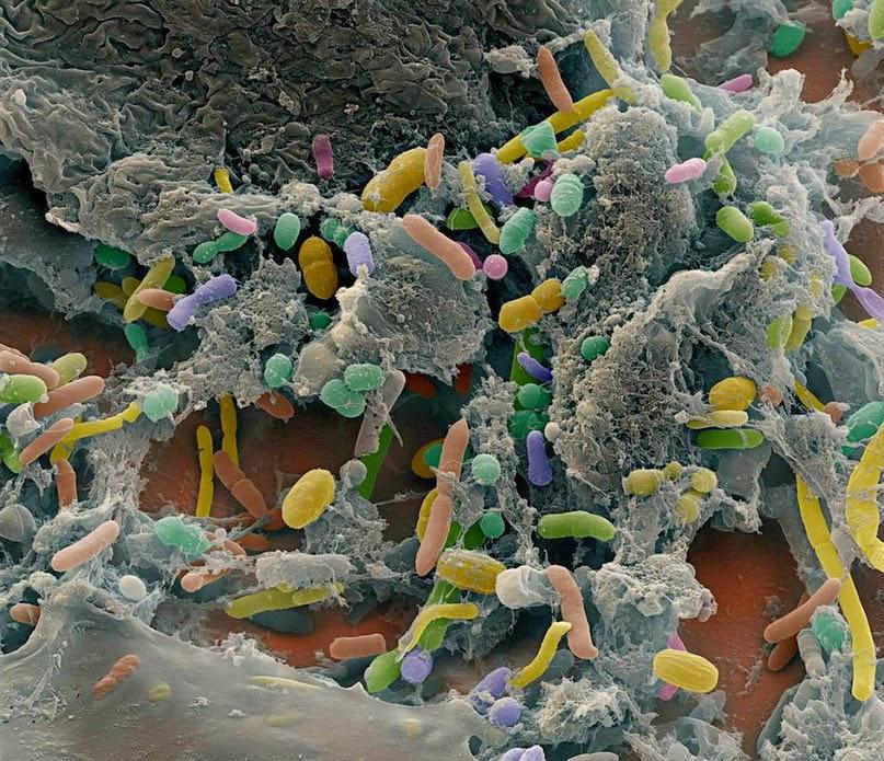bakterii-kichhechnik