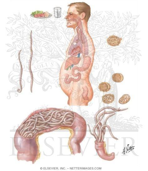 Los sntomas de infeccin intestinal Salud y bienestar