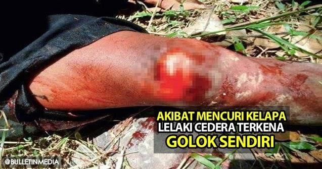 Inilah Padahnya, Akibat Mencuri Kelapa Lelaki Cedera Terkena Golok Sendiri
