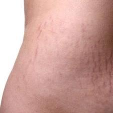 كيف تمنعي علامات تمدد الجلد قبل ظهورها؟