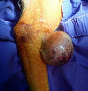 tumor bernigno