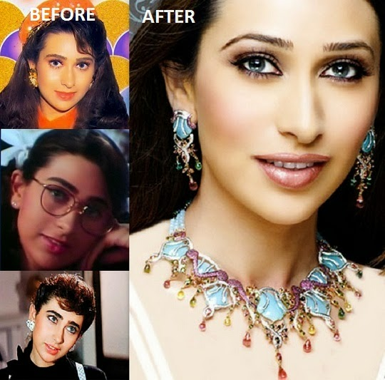 Top 20 Bollywood Beauties Who Have Gone Under Knife And ...