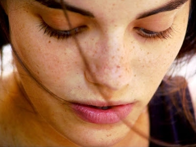 How to Treat Freckles Naturally