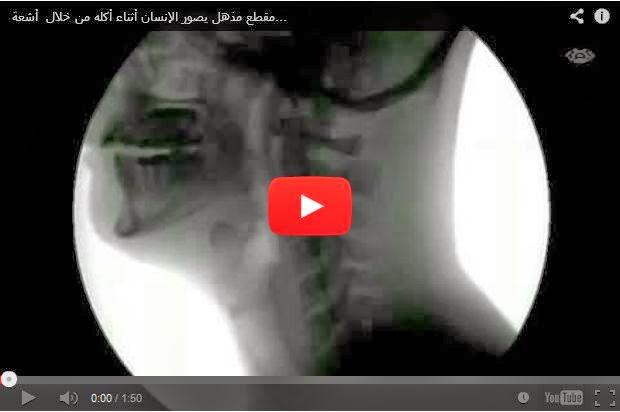 مقطع مذهل يصور الإنسان أثناء أكله من خلال أشعة إكس X Ray
