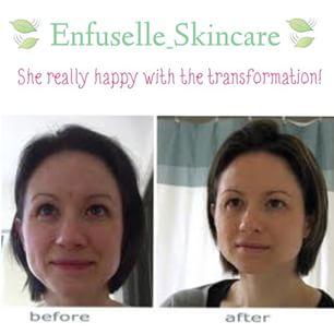 Testimoni Enfuselle Skin Care Shaklee