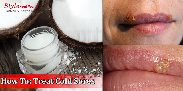 How To Treat Cold Sores - How To Get Rid Of Cold Sores Very Fat At Home