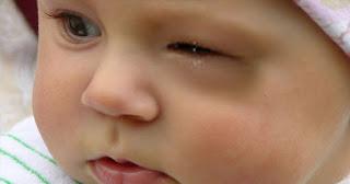 4 Penyebab Sakit Mata Pada Anak