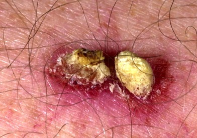 squamous skin cancer pictures