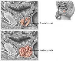 obat herbal kanker prostat