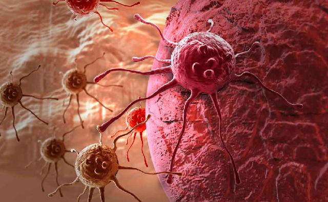 Científicos revelan cuáles son las principales causas del 90% de los casos de cáncer