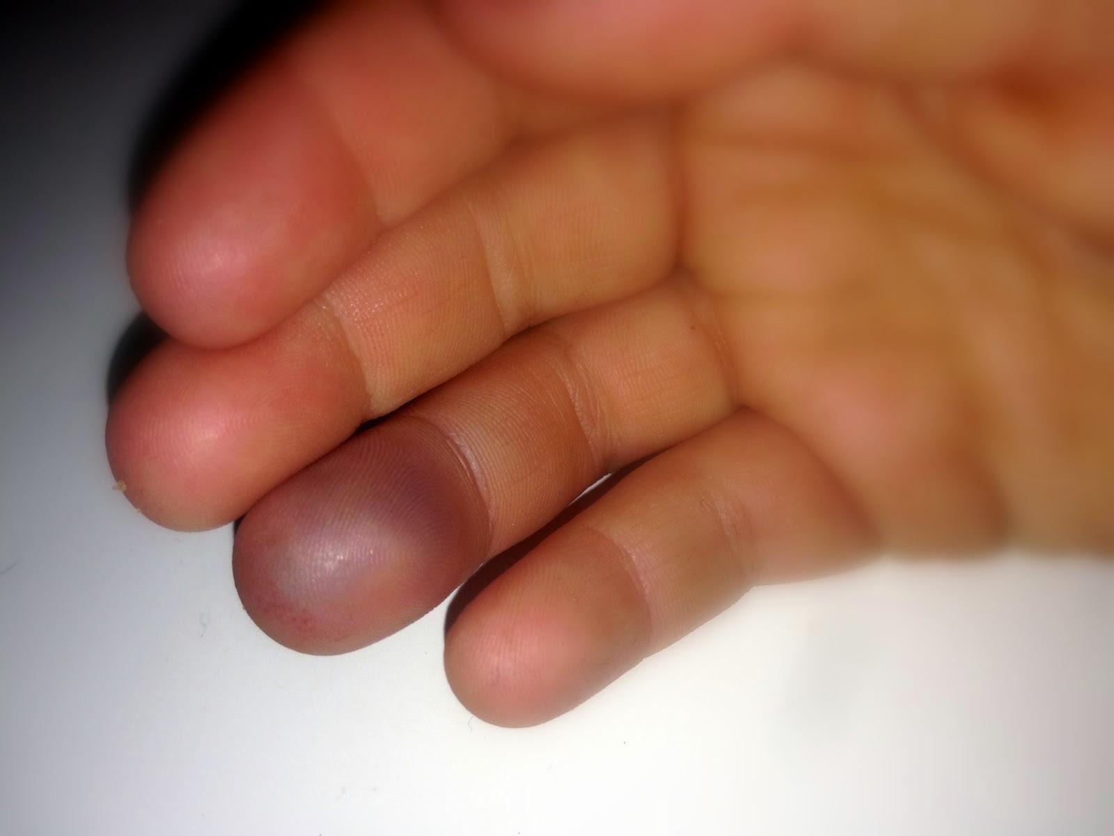 svullet finger blått