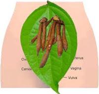obat herbal penyakit keputihan