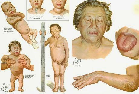 Todo lo que tienes que saber del hipotiroidismo