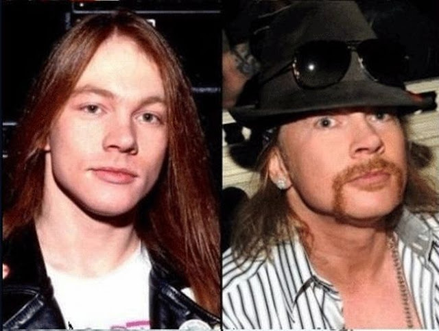 axel-rose-rock stars then and now