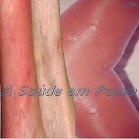 Perna com infecção por Erisipela