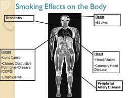 disadvantages of smoking It is a known fact that tobacco smoking has many disadvantages medical research has found that smoking is a major factor for developing several health problems such as lung cancer, emphysema, and cardiovascular disease.