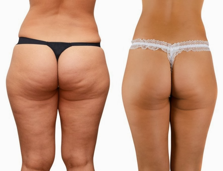 Squats Before And After simple truth