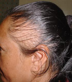Que vitaminas son mejor aplicar a la caída de los cabello