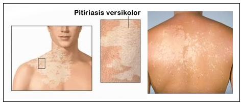 Pengobatan Pitiriasis Versikolor