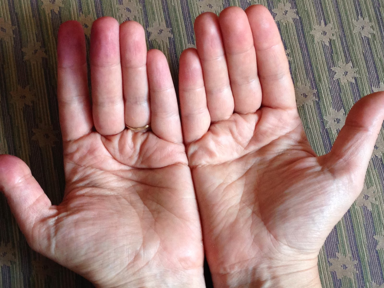 Zoom Times: The Simian Crease Vs. The Hand of Power