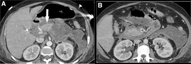 Pancreatitis aguda necrotizante con más del 50% de necrosis