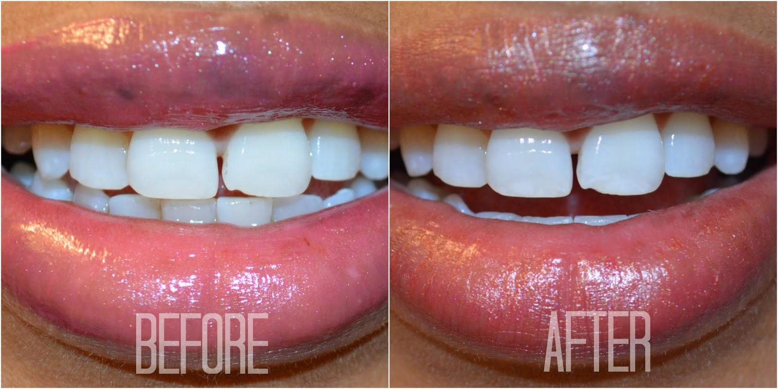 Отбеливание зубов в воронеж