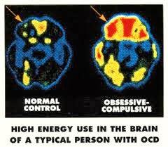 علاج الوسواس القهري OCD