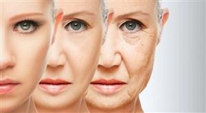 Mencegah Penuaan