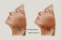 Cara Menyembuhkan Tumor Di Leher