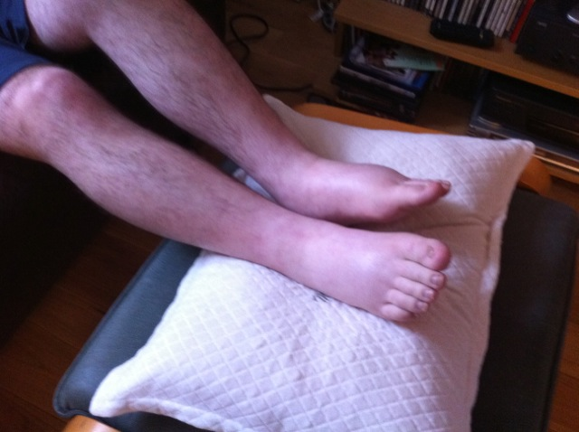 What helps for swollen legs and feet