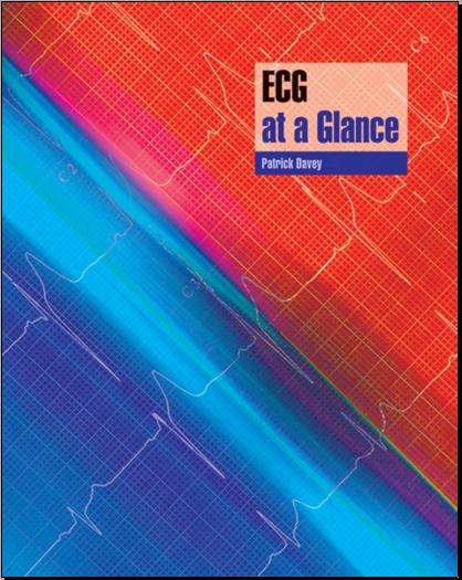 rapid interpretation of ekg's 6th pdf