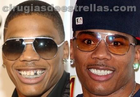 Nelly antes y después