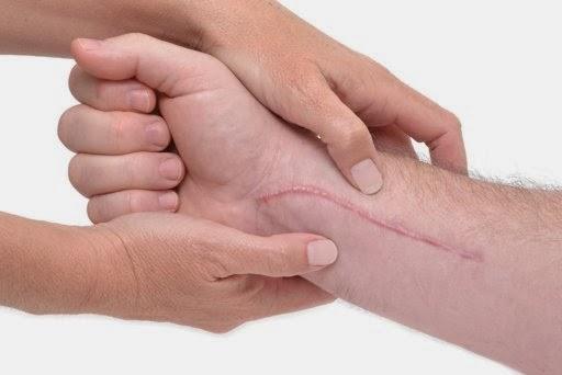 cara menghilangkan bekas luka