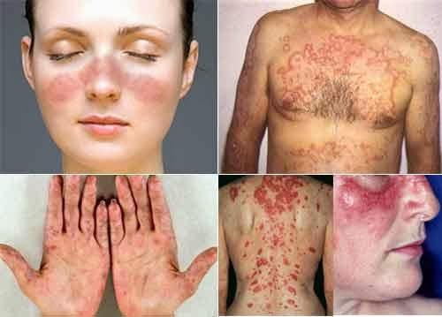 Cara Mengobati Penyakit Lupus Secara Alami
