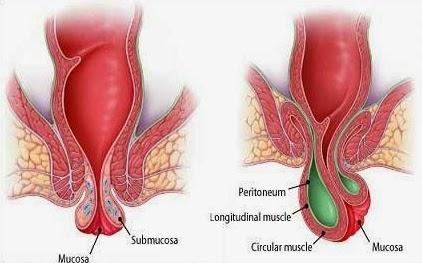 Image Obat Wasir yang Direkomendasikan Dokter