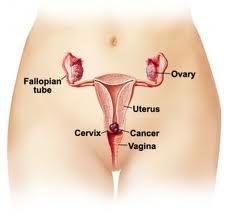 penyebab kanker serviks,gejala kanker serviks,faktor resiko kanker serviks,penyebab kanker serviks