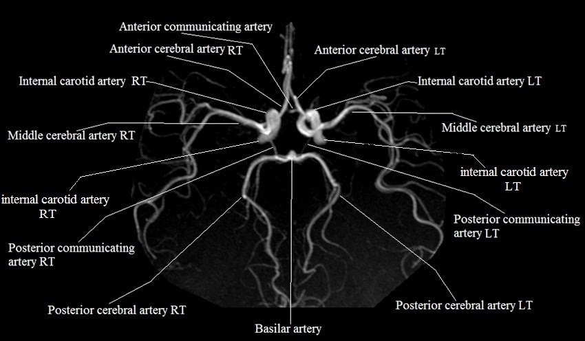 Mra Brain Anatomy Radiology Anatomy Images