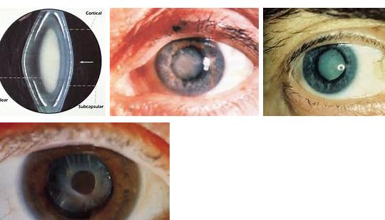 Cara mengobati mata katarak