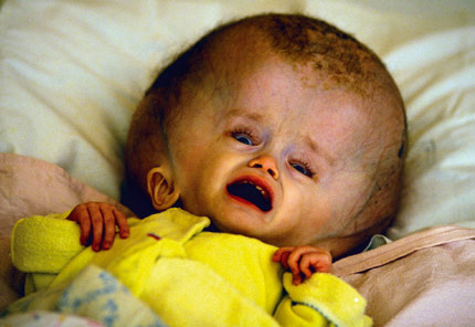 Birth Defects From Radiation