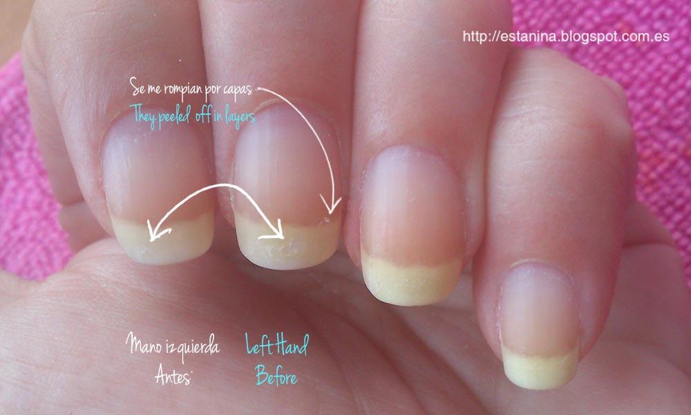 Uñas antes y después de tratamiento