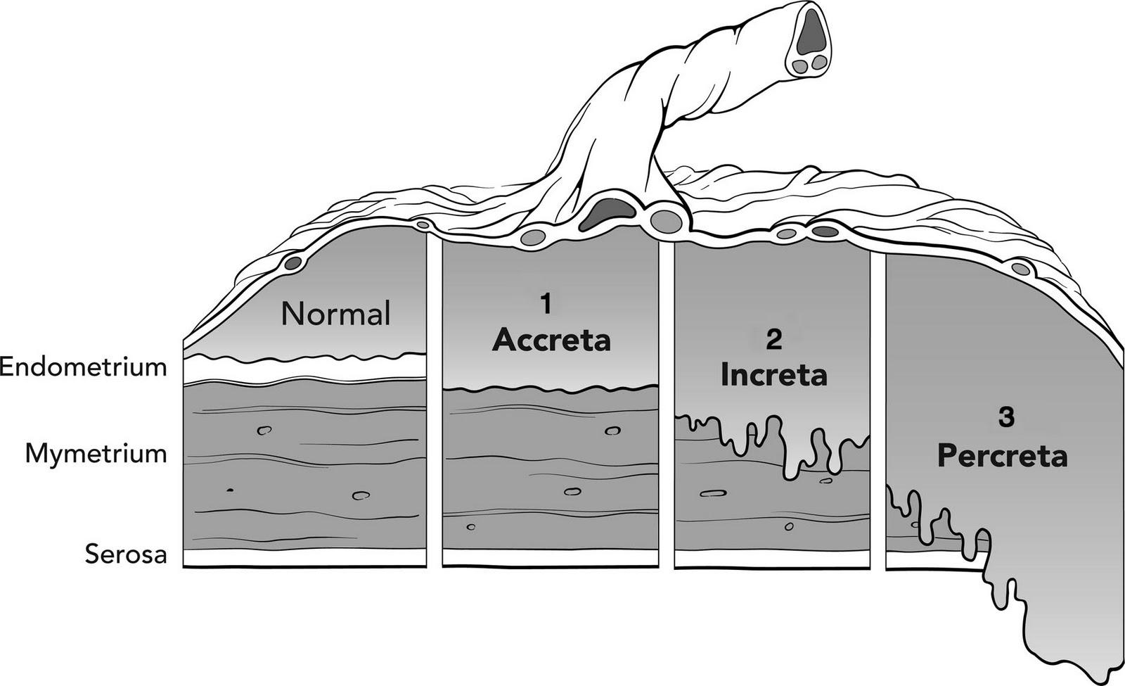 Anesthesia resident placenta accreta facts placenta accreta facts pooptronica Choice Image