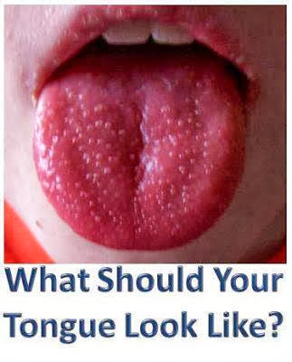 What Does The Healthy Tounge Looks Like Informative Stall