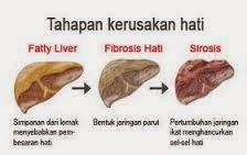 Bahaya Penyakit Gangguan Fungsi Hati