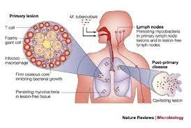 Obat tbc herbal alami