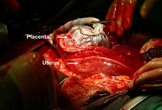 Placenta Percreta - notice how the placenta is growing into the uterus