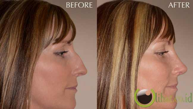 Operasi Hidung (rhinoplasty)