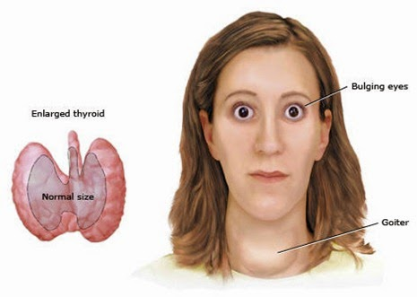 Enfermedades de la tiroides actualizado