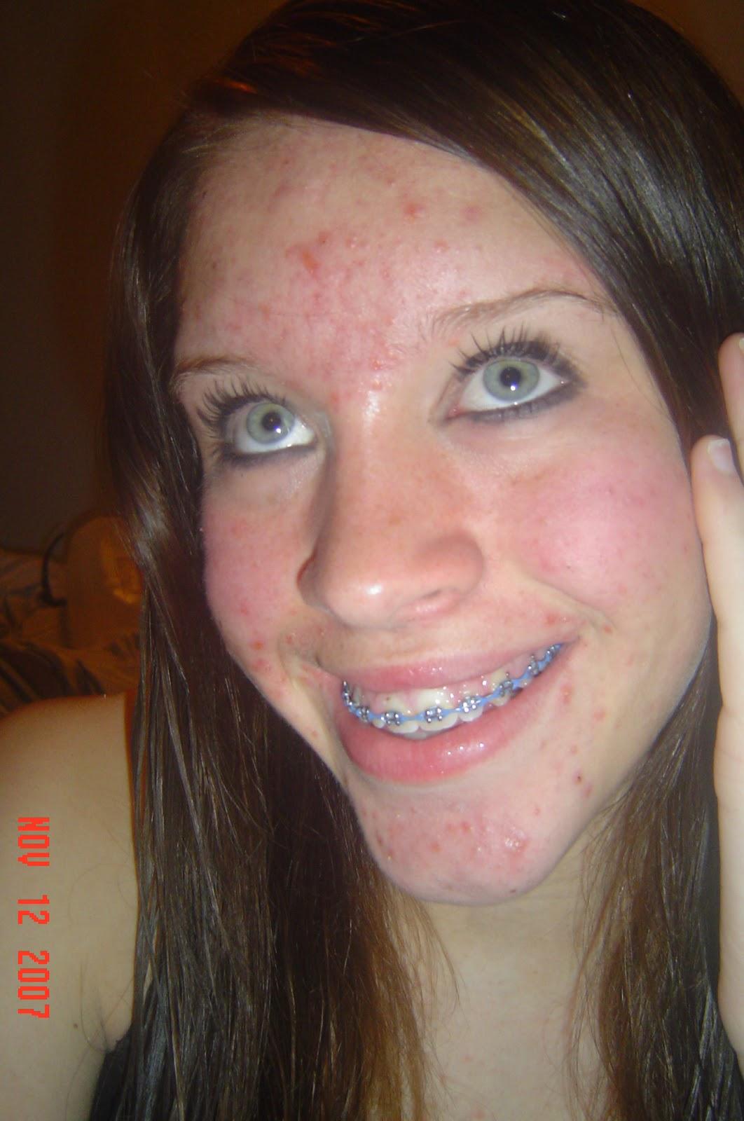 Princess of Christ: Skin Care
