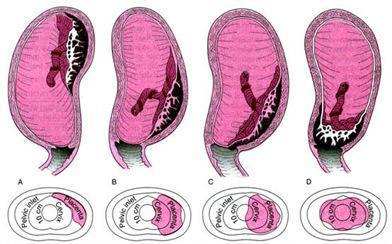 Pendarahan Kehamilan Lanjut Darah Implantasi