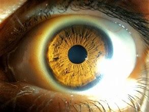 شركة بريطانية تطور استخدام الجينات لمعالجة العمى